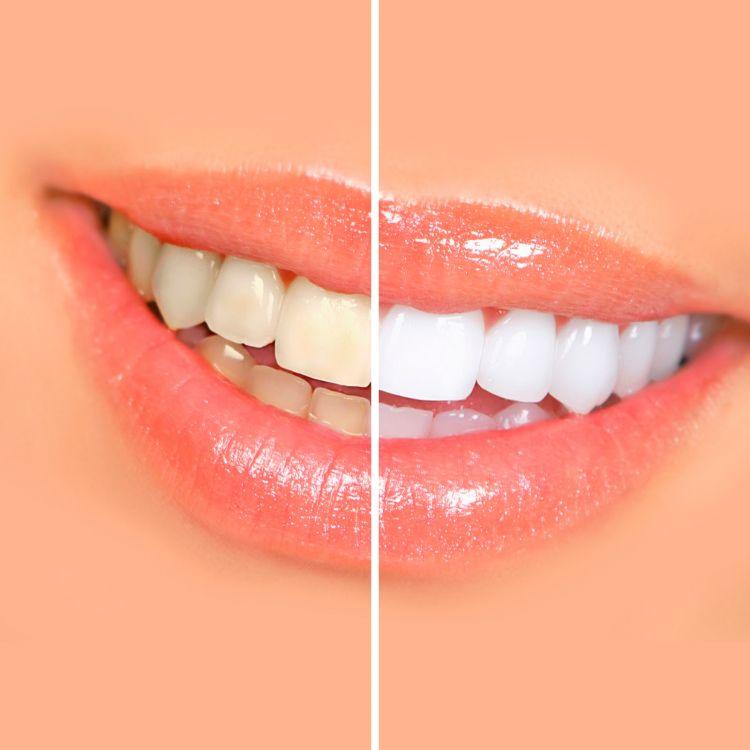 Receta casera ¿Cómo blanquear los dientes?