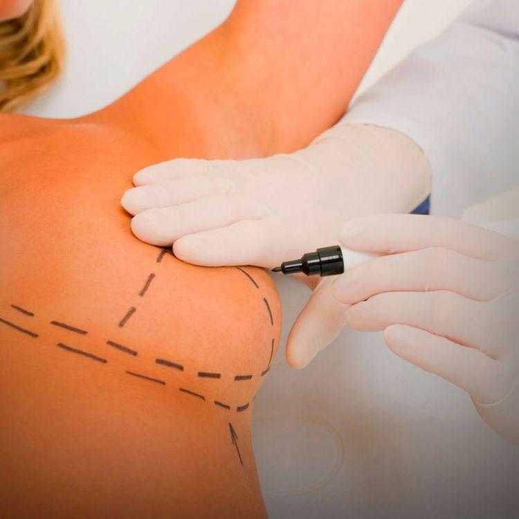 ¿Los implantes mamarios pueden provocar cáncer?