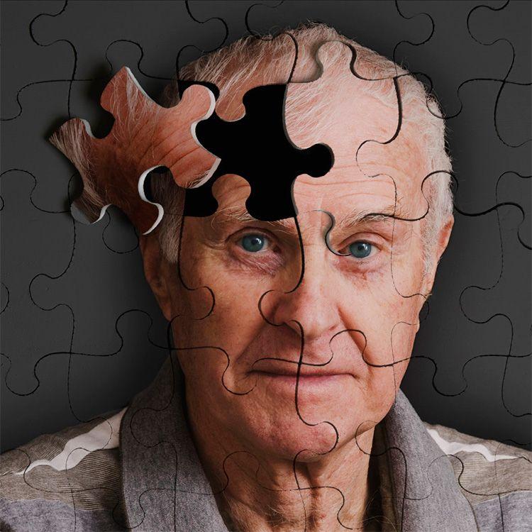 Científicos italianos descubren el supuesto origen del Alzheimer