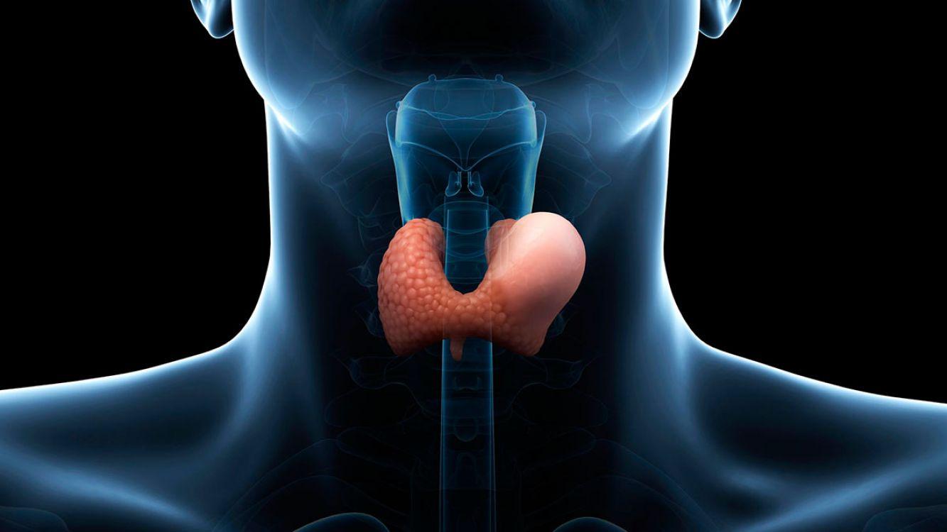 ¿Puede el hipotiroidismo ser la causa de mi sobrepeso?