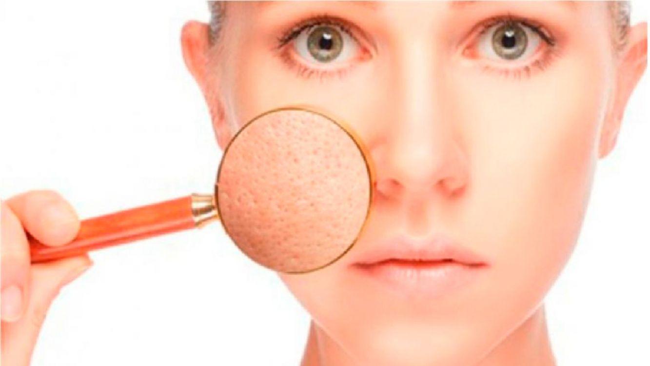 Consejos de belleza: ¿Qué hacer con los poros abiertos?