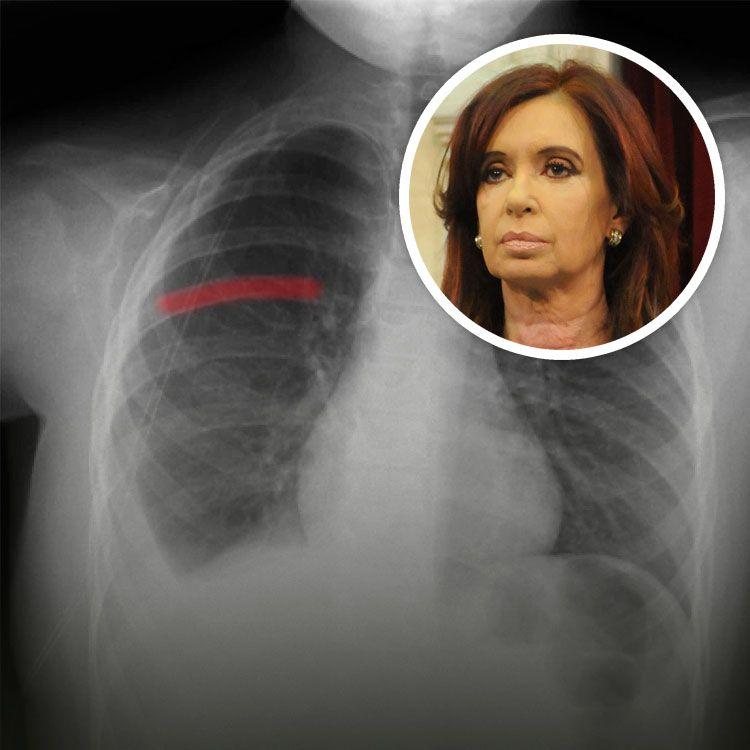 Cristina Kirchner sufrió una caída y se fisuró una costilla