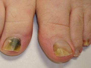 Hongos de uñas de pie