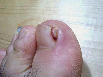 Cómo curar los hongos en las uñas de los pies