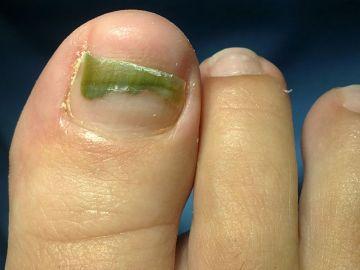 Cómo curar los hongos de las uñas rapidamente