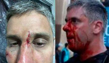 Efectivos policiales fueron derivados a distintos hospitales por diferentes heridas.