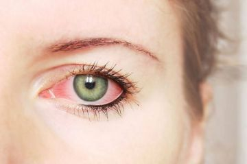 Trata problemas oculares