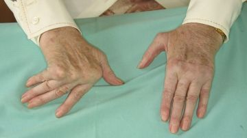 Alivia la artritis reumatoide
