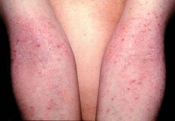 Daños irreversibles en la piel